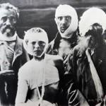 9. Жертвы погрома из с. Ходорковичи в Александровском госпитале, Киев.
